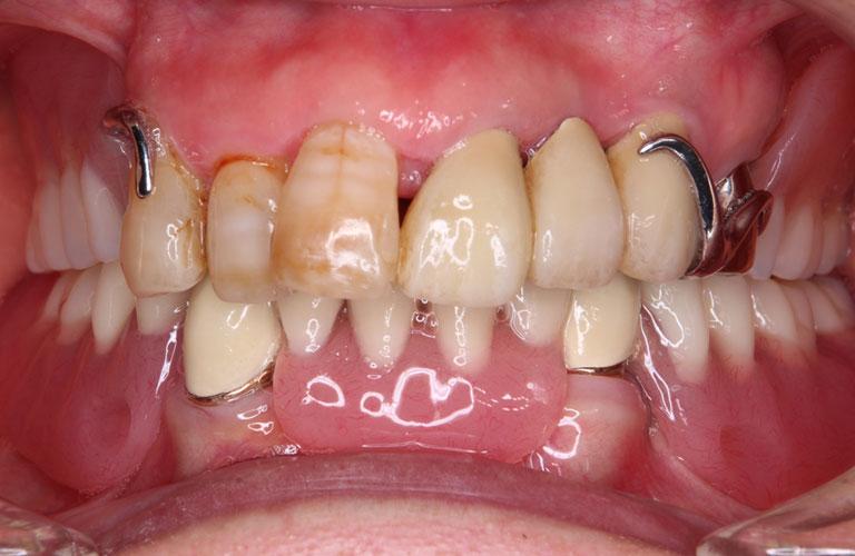コーヌス義歯症例2 治療後