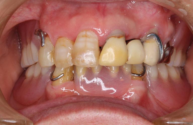 コーヌス義歯症例2 治療前