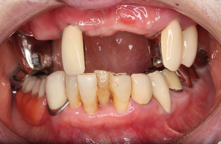 エステショット症例3 治療前