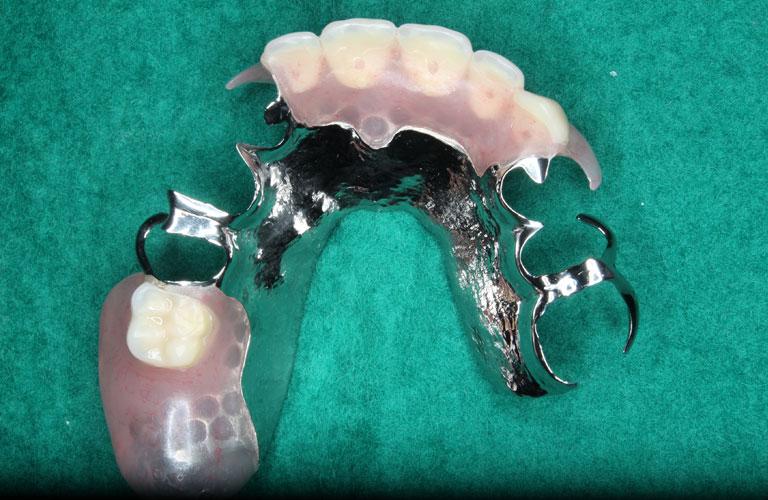 エステショット症例4 製作したエステショット義歯