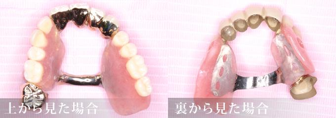 コーヌス義歯①