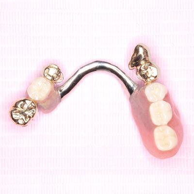 さいたま市で入れ歯がうまい歯医者、歯科医院