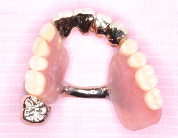 世界に一つだけの入れ歯
