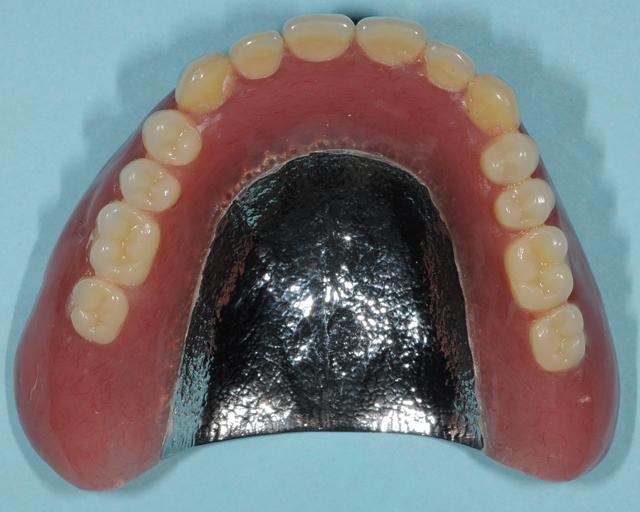金属床の総入れ歯・久喜市 いしはた歯科クリニック