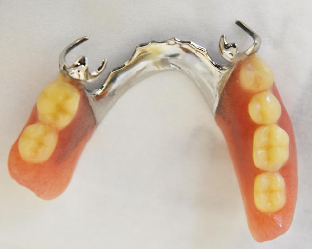 金属床・部分入れ歯・久喜市 いしはた歯科クリニック