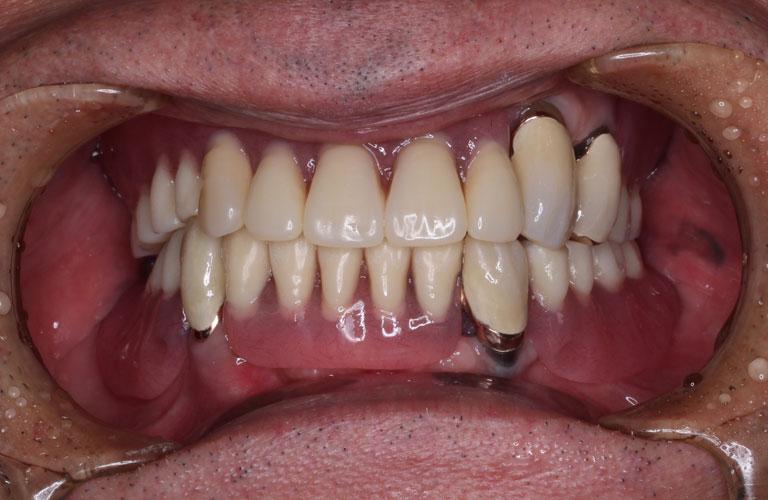 コーヌス義歯症例1 治療後