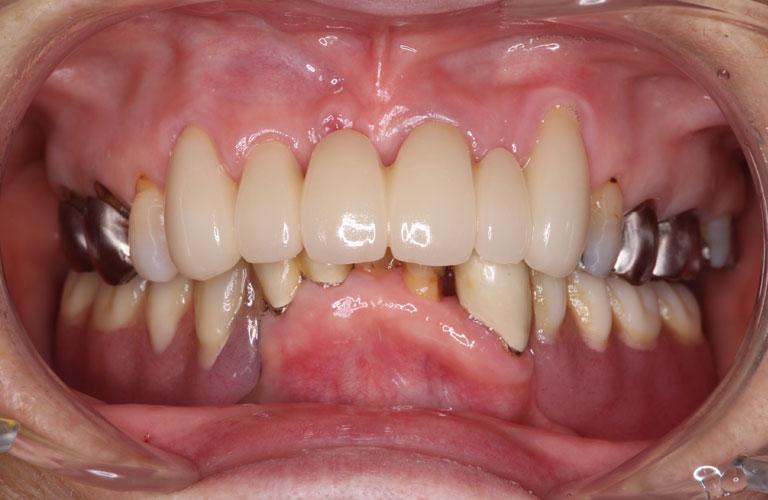 コーヌス義歯症例3 治療後
