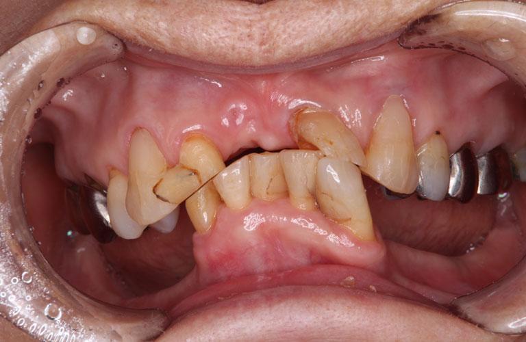 コーヌス義歯症例3 治療前
