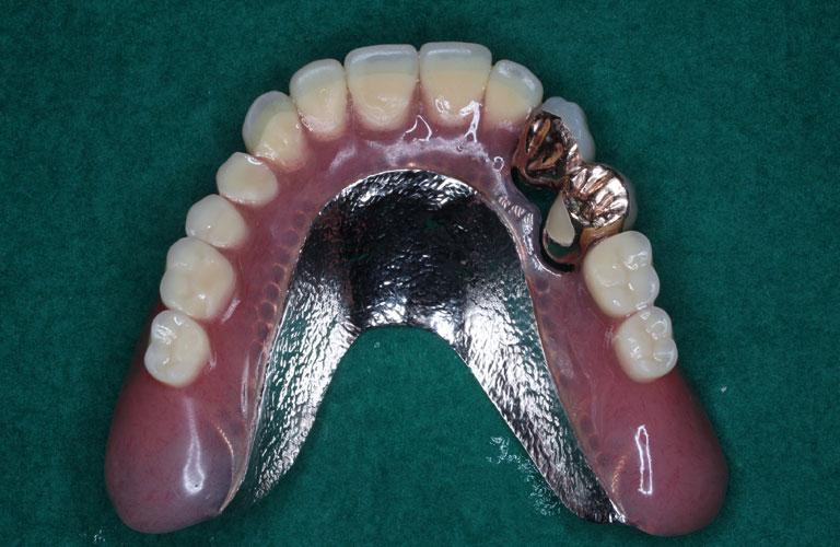 コーヌス義歯症例1 上顎