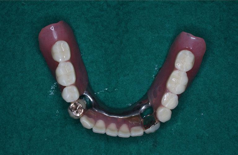 コーヌス義歯症例1 下顎